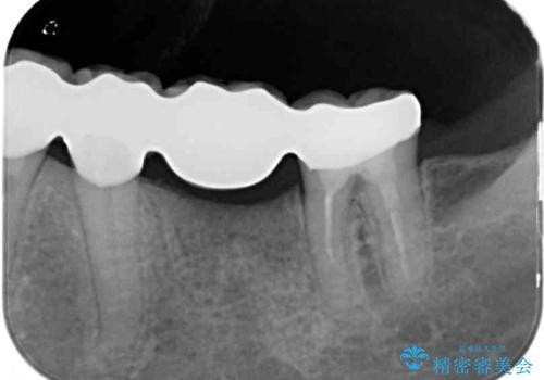 歯の欠損を放置 オールセラミックブリッジによる補綴治療の治療後