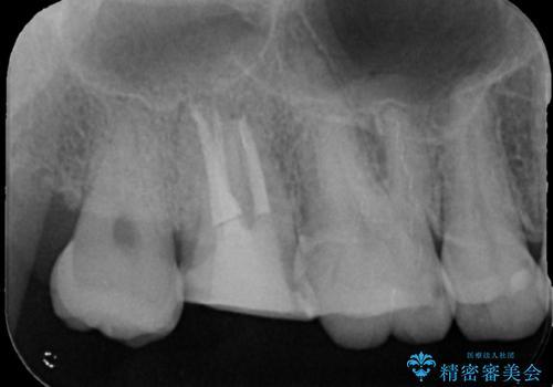 [フルジルコニアクラウン] 老朽化した銀歯を白くの治療中
