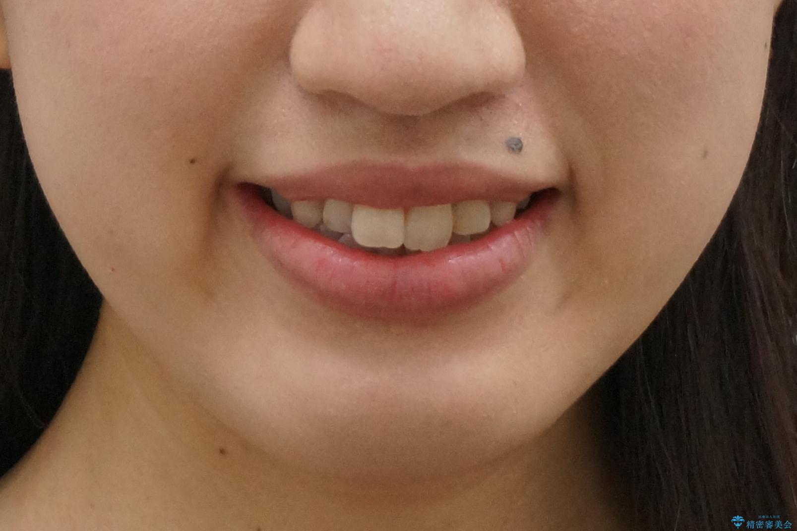 上下の前歯のがたつき 歯を抜かずに矯正の治療前(顔貌)