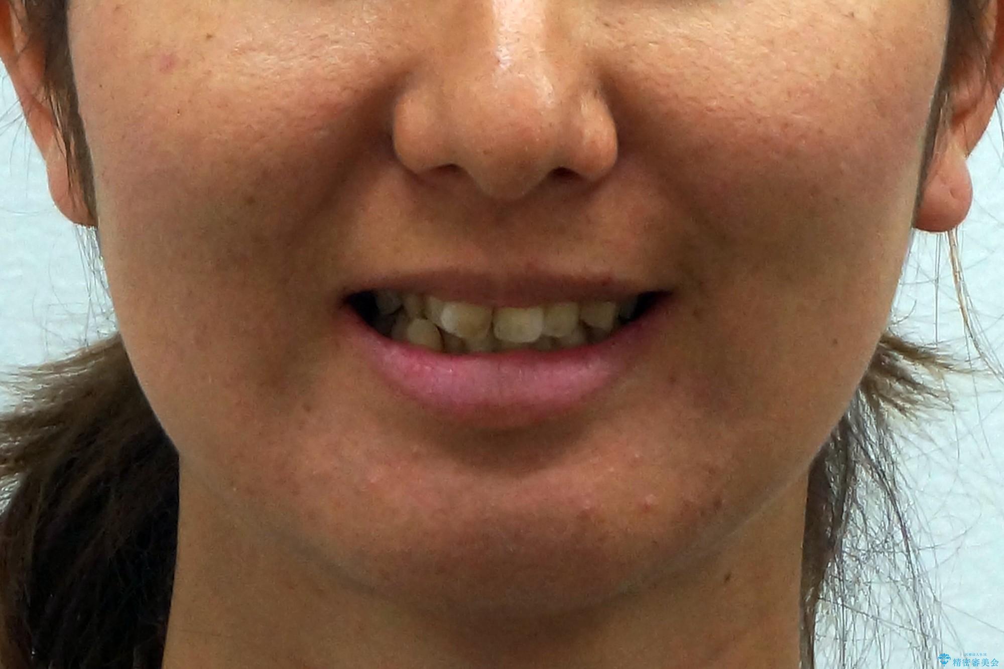 30代女性 残った乳歯を抜いてスペースを閉じる矯正 前歯のねじれの治療前(顔貌)