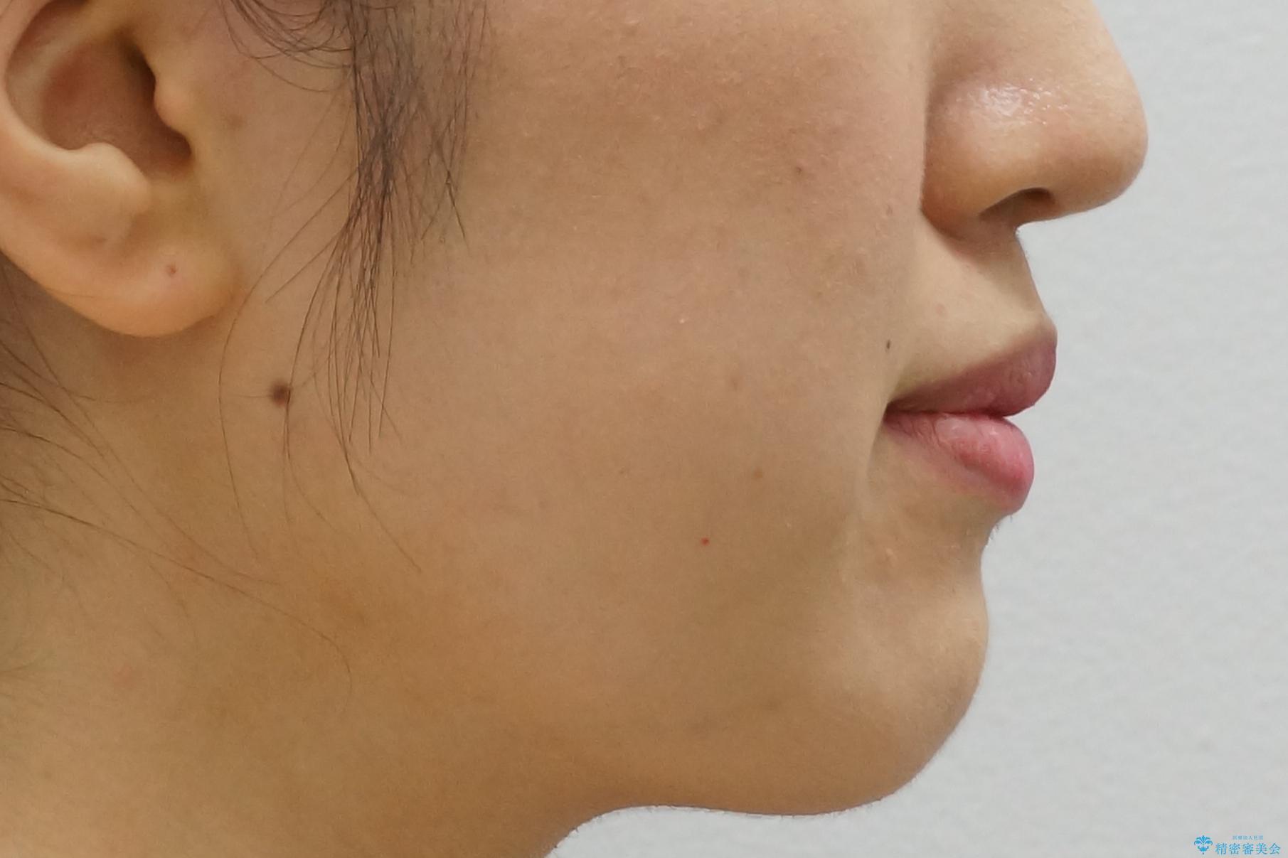上下の前歯のがたつき 歯を抜かずに矯正の治療後(顔貌)