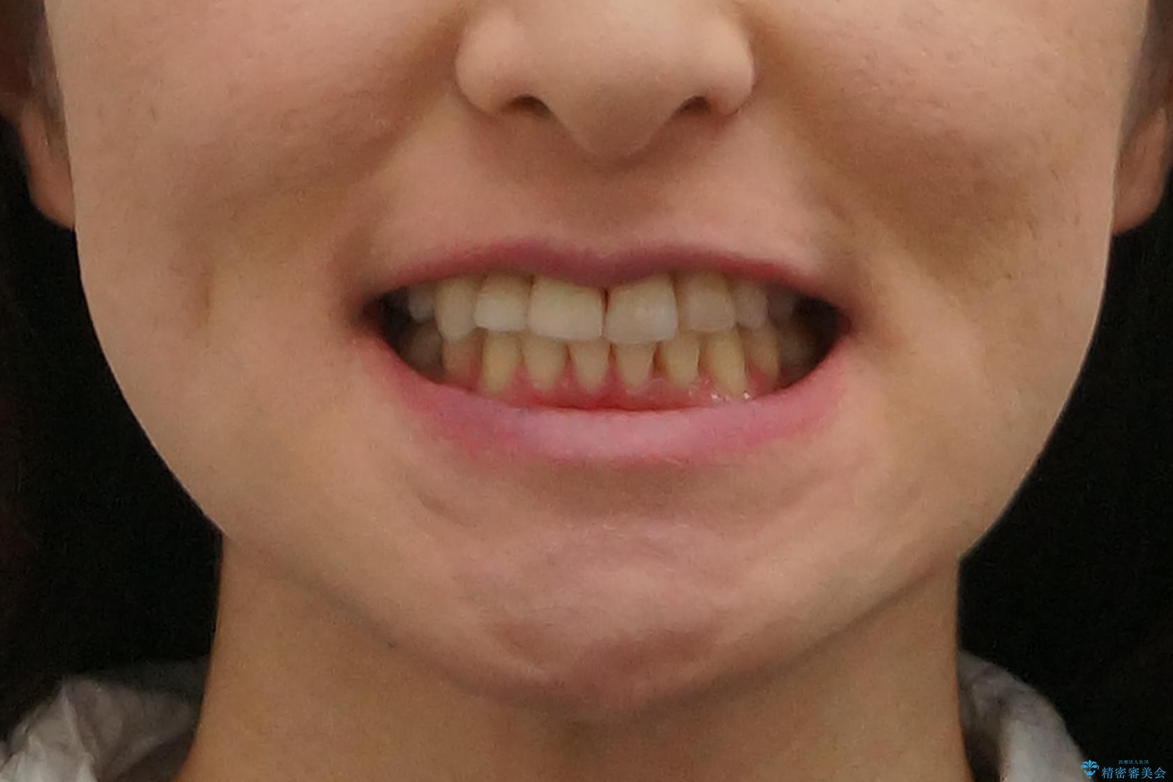 前歯がグラグラする 他院で、もうできることがないと言われたの治療後(顔貌)