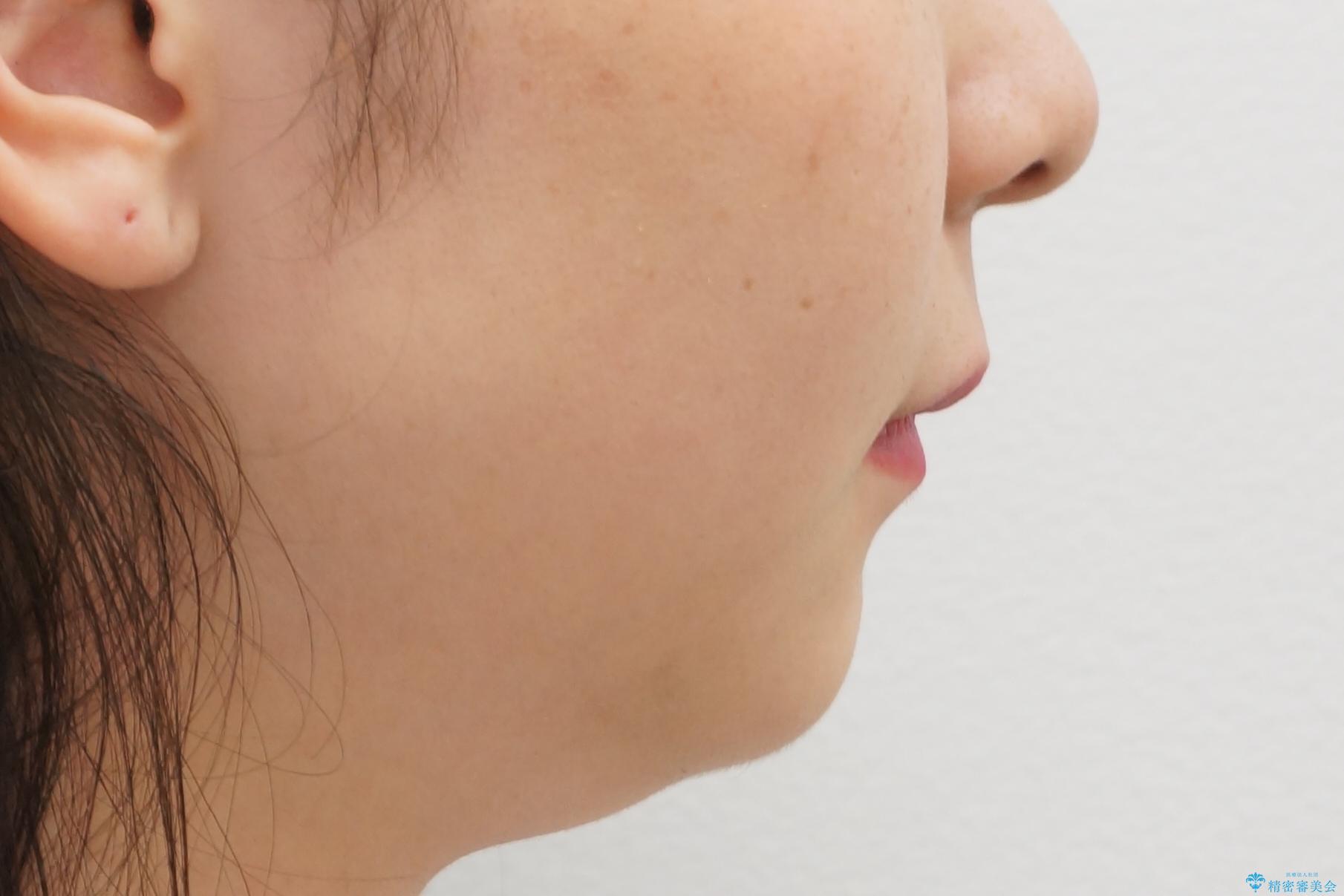 前歯のがたつき 過蓋咬合の治療後(顔貌)
