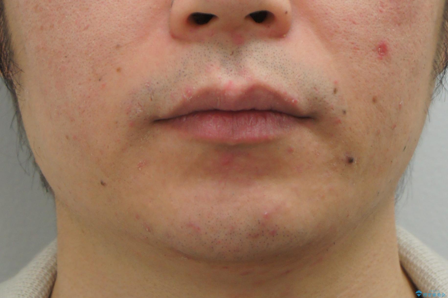 前歯のねじれを 1年かけずに矯正 インビザラインの治療前(顔貌)