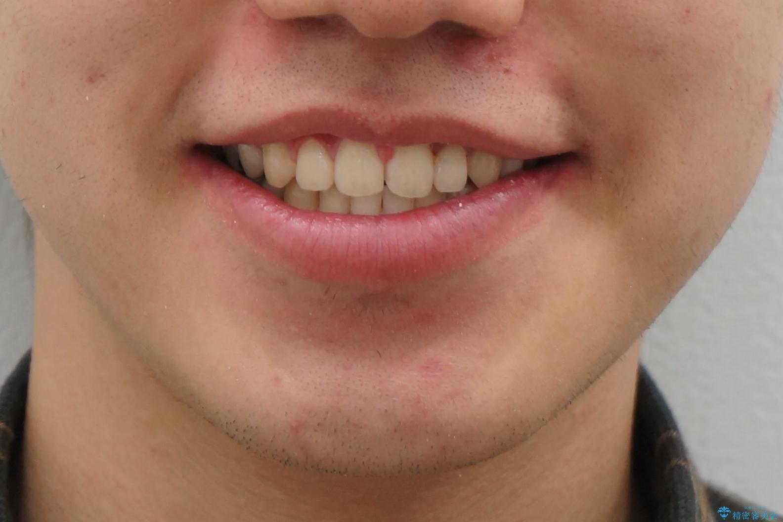 前歯のねじれ 上だけ部分矯正でコストダウンの治療後(顔貌)