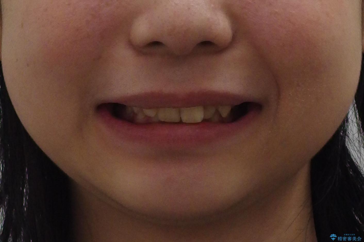 前歯のがたつき 過蓋咬合の治療前(顔貌)