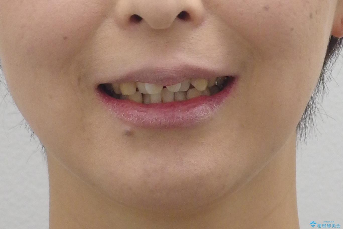 40代の矯正 出っ歯、歯のがたがたの治療前(顔貌)