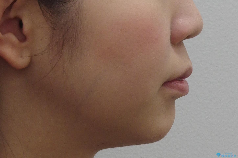 20代女性 口元を下げたい 前歯のがたつきの治療前(顔貌)
