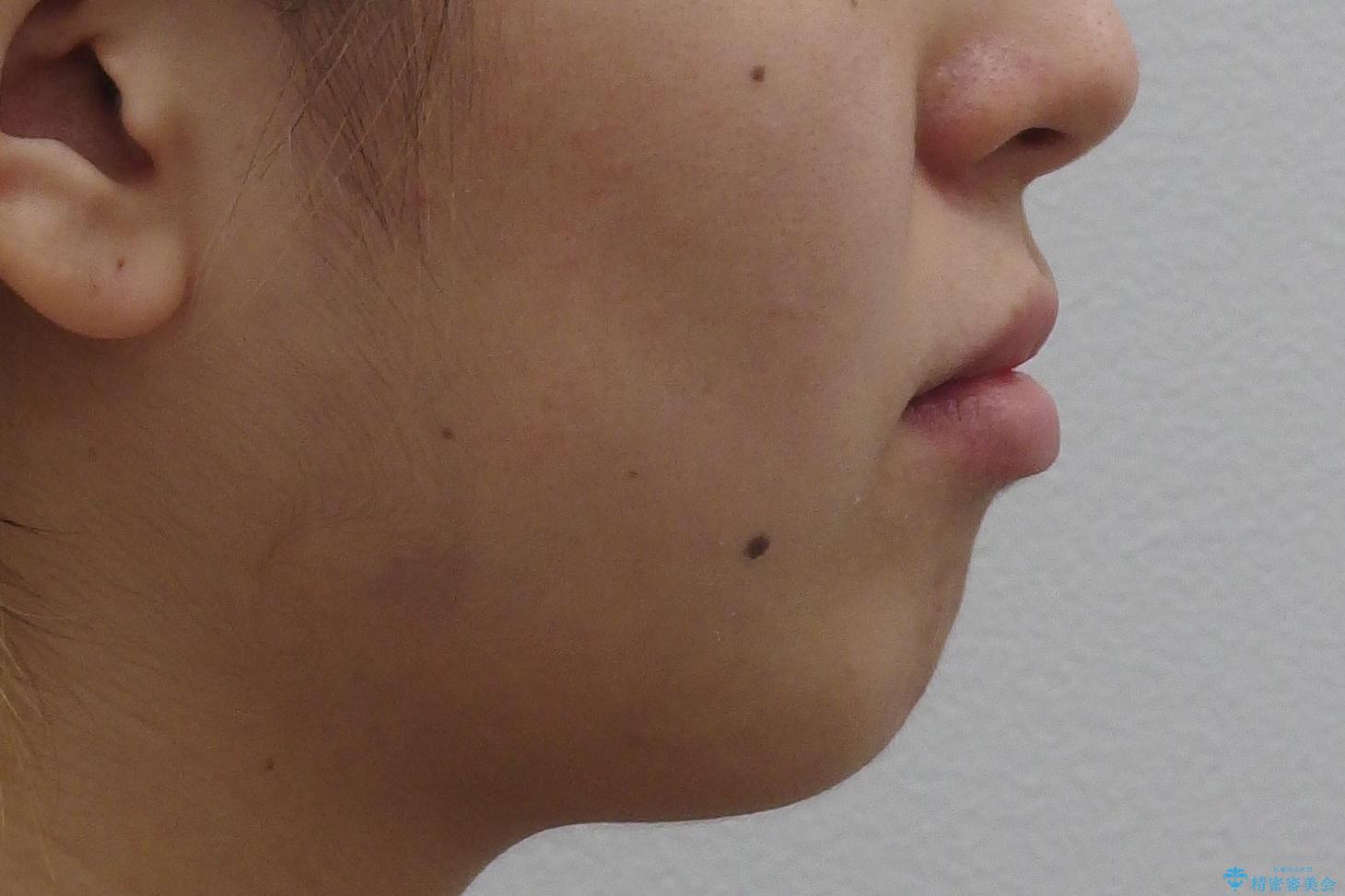 八重歯の治療 仕上がり重視での治療前(顔貌)