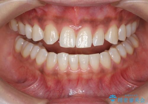 ホワイトニングで白い歯に 1日でできますの治療後