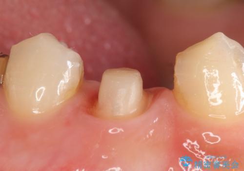 オールセラミッククラウン 咬むと痛む歯の根管治療~補綴の治療中