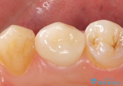 オールセラミッククラウン 咬むと痛む歯の根管治療~補綴の治療後