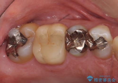 銀歯の下が虫歯 セラミックインレーにの治療前