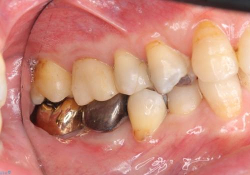 下の奥歯の虫歯 歯周外科手術を含めた治療の治療後