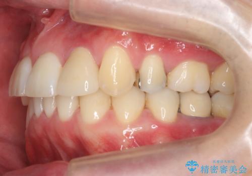 八重歯の矯正+歯のないところにインプラントの治療後
