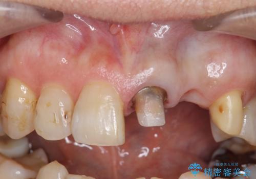 オールセラミッククラウン 前歯のブリッジ 気になる見た目の改善の治療中