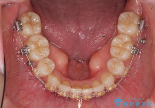 20代女性 口元を下げたい 前歯のがたつきの治療中