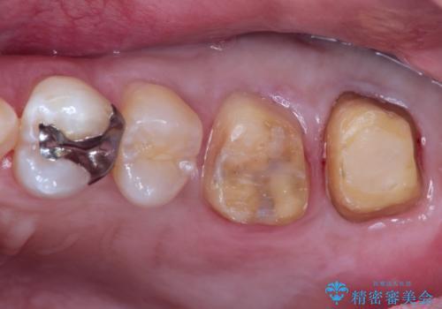 目立つ金歯を自然な色のオールセラミックへの治療中