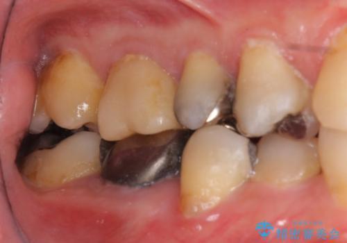 下の奥歯の虫歯 歯周外科手術を含めた治療の治療前