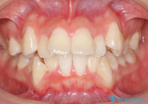 八重歯の治療 仕上がり重視での症例 治療前