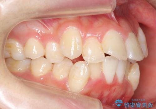 八重歯の治療 仕上がり重視での治療前