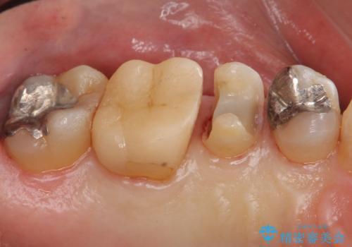 銀歯の下が虫歯 セラミックインレーにの治療中