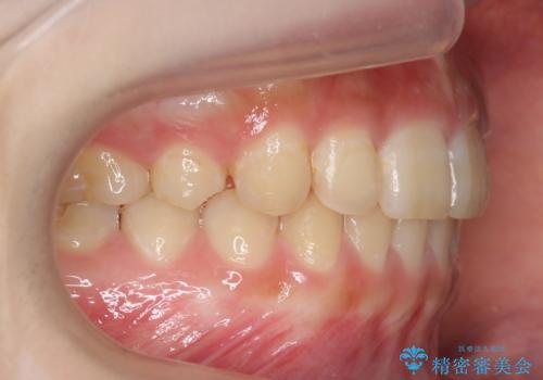前歯のがたつき 過蓋咬合の治療後