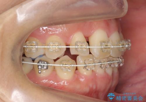 30代女性 残った乳歯を抜いてスペースを閉じる矯正 前歯のねじれの治療中