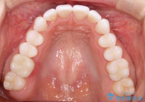 気になる前歯の歯並びをインビザラインで矯正の治療後