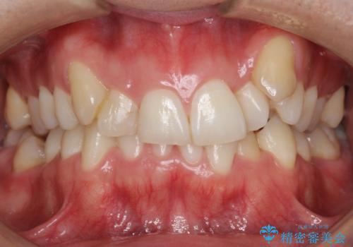 八重歯の矯正+歯のないところにインプラントの症例 治療前
