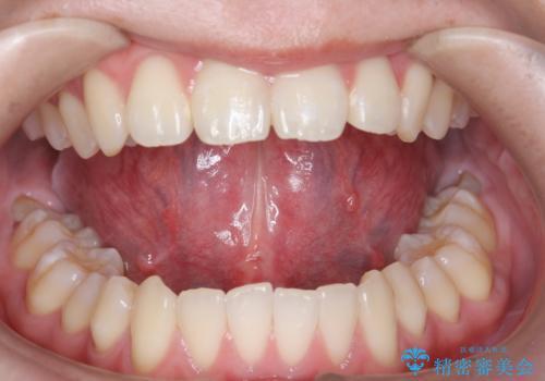 舌小帯切除 舌が動かしにくいの治療後