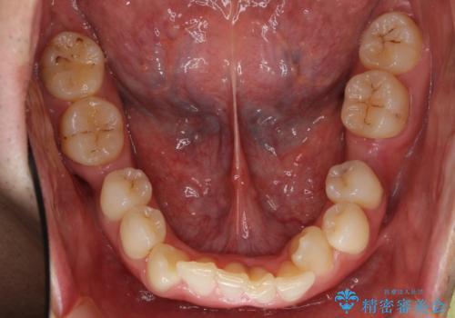 八重歯の矯正+歯のないところにインプラントの治療前