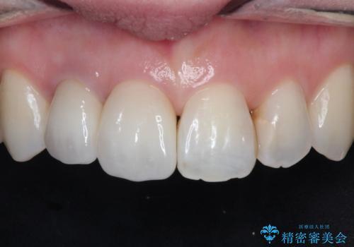前歯が痛い。根管治療~オールセラミッククラウンの治療後