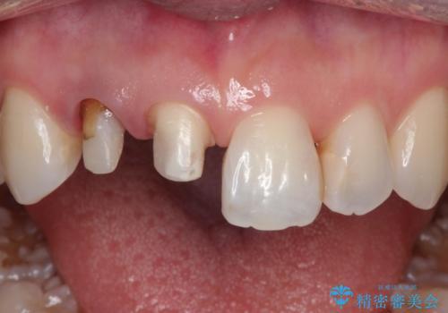 前歯が痛い。根管治療~オールセラミッククラウンの治療中