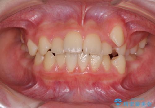 乳歯が残っている 目立たない装置での抜歯矯正の症例 治療前