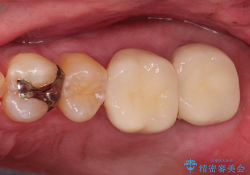 目立つ金歯を自然な色のオールセラミックへの治療後