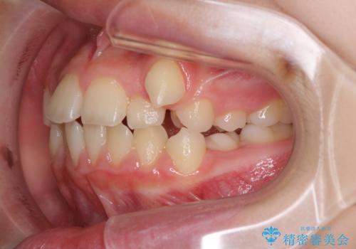 乳歯が残っている 目立たない装置での抜歯矯正の治療前