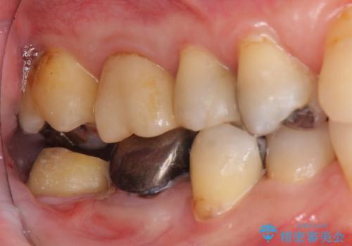 下の奥歯の虫歯 歯周外科手術を含めた治療の治療中