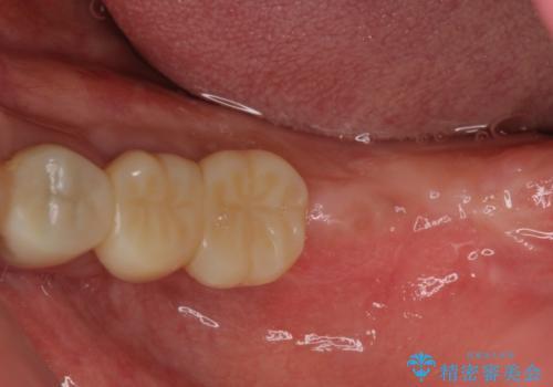 奥歯が痛くて噛めない インプラントによる補綴治療の治療中