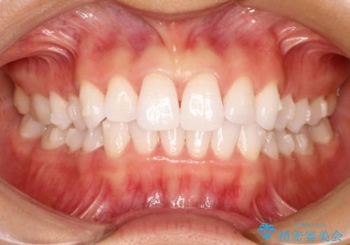 気になる前歯の歯並びをインビザラインで矯正の治療中