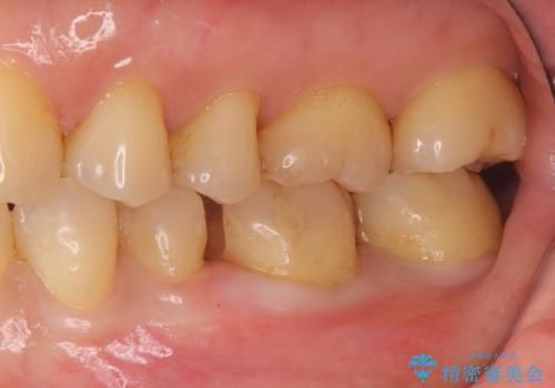 目立つ銀歯を全て白く セラミックで虫歯治療の治療中