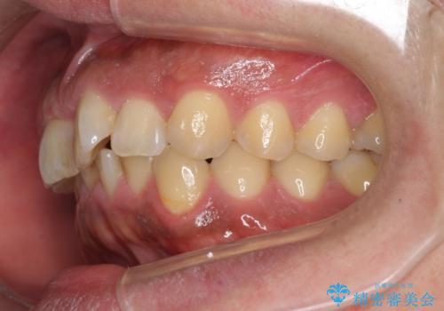 前歯のねじれを 1年かけずに矯正 インビザラインの治療前
