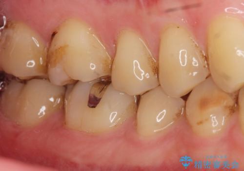 深い虫歯 丁寧にう蝕を除去し神経を保存 30代男性の治療前