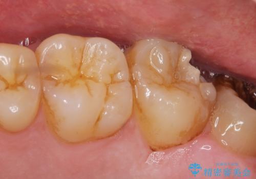 深い虫歯 丁寧にう蝕を除去し神経を保存 30代男性の症例 治療前