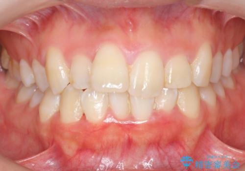 上下の前歯のがたつき 歯を抜かずに矯正の症例 治療前
