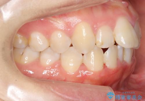 上下の前歯のがたつき 歯を抜かずに矯正の治療前