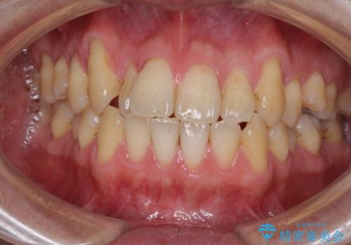 矯正歯科治療と前歯の歯肉移植術の症例 治療前