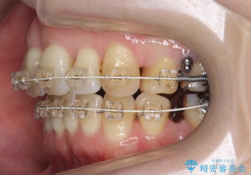 40代の矯正 出っ歯、歯のがたがたの治療中