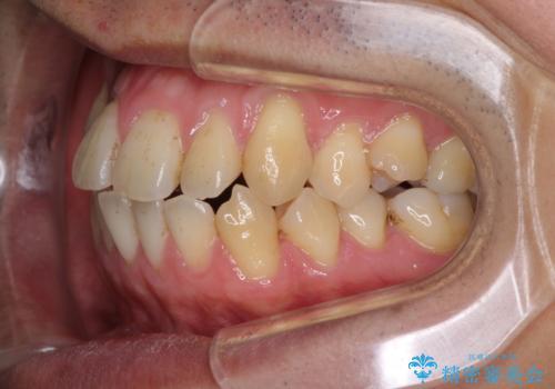 矯正歯科治療と前歯の歯肉移植術の治療前