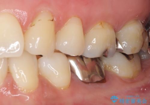 目立つ銀歯をセラミックにの治療前